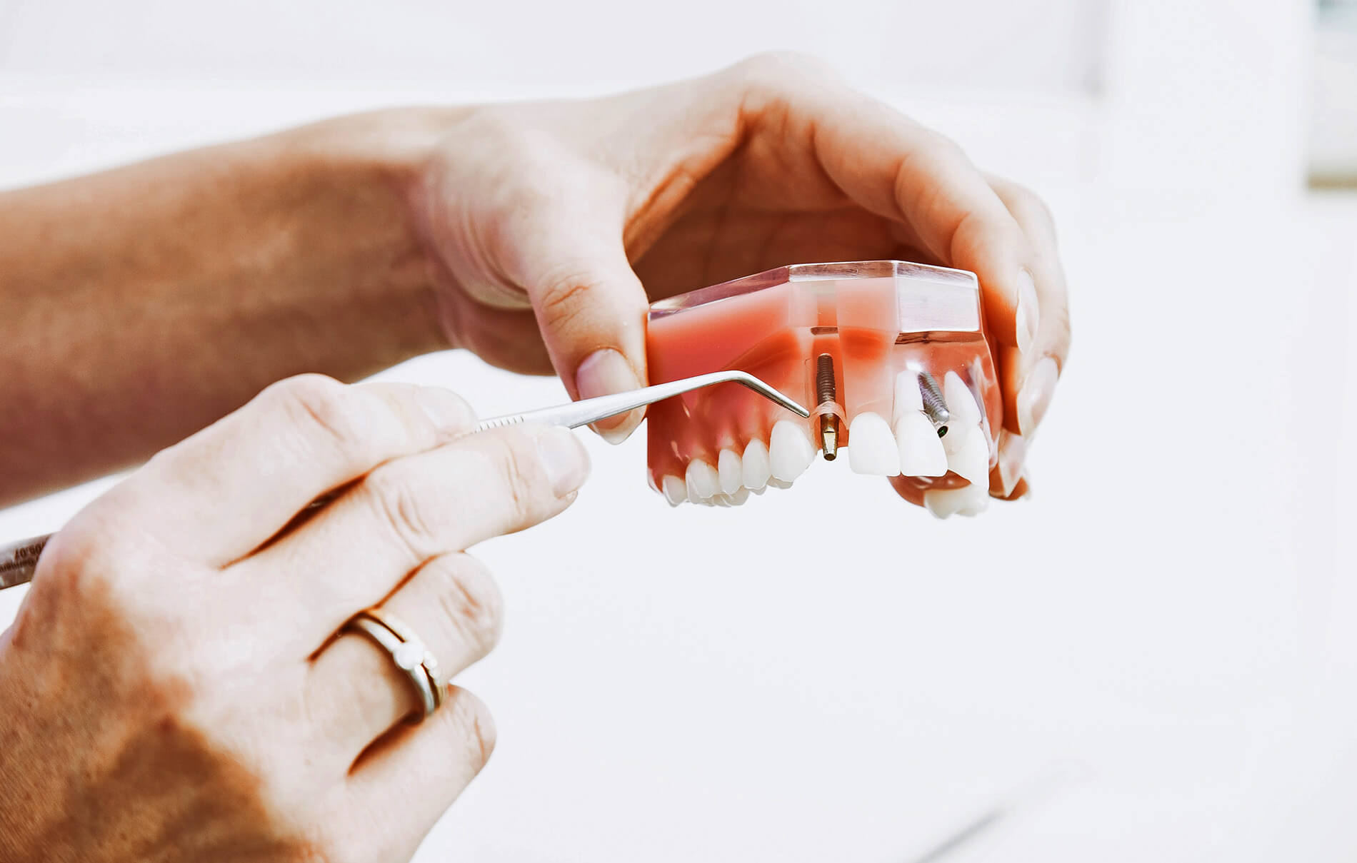 Dental implant made possible by insurance for seniors